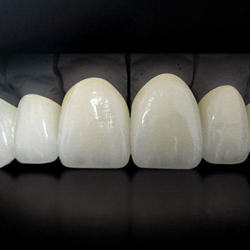 estetica-dental-sonria-bg
